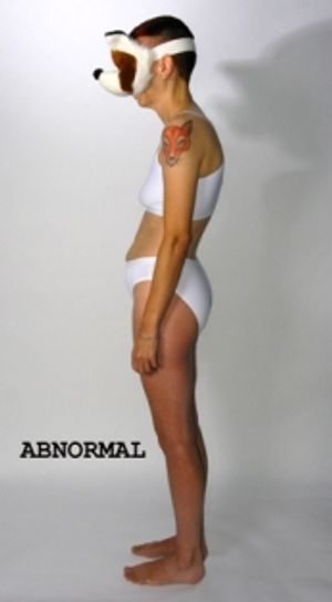 Abnormal: Towards a Scientific Model of Disability by Ju Gosling aka ju90